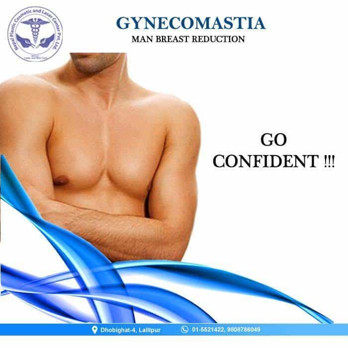 gynecomastia men breast reduction surgery in nepal
