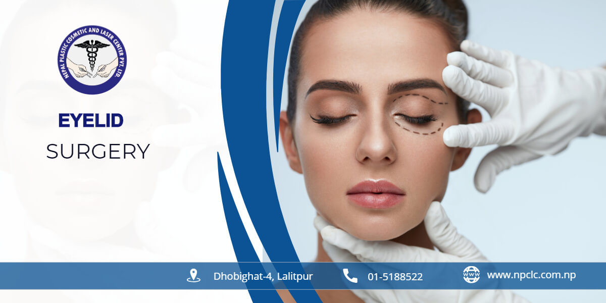 Blepharoplasty( EYE surgery) | eyelid surgery in kathmandu