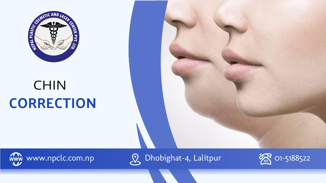 chin correction in nepal